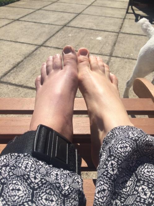 Fat foot